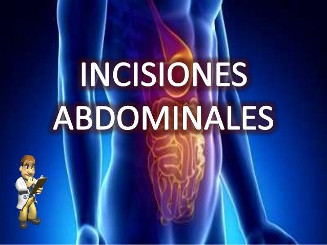 • Puede realizarse a la derecha o izquierda y en el abdomen superior medio o inferior • No afectan a la inervacion de ning...