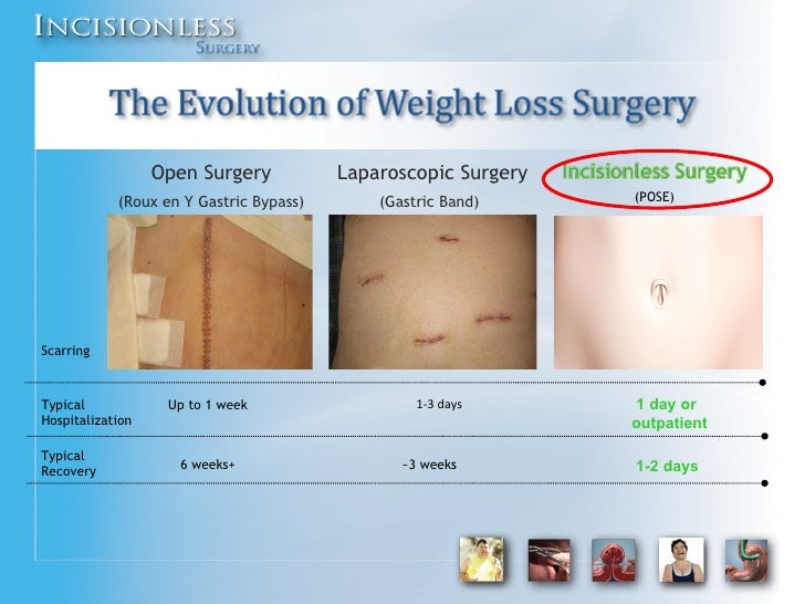 Incision Free Weight Loss Surgery