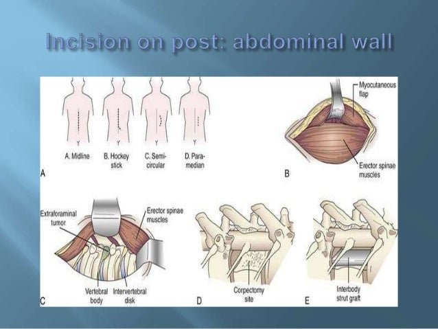 Incisions on abdominal wall'