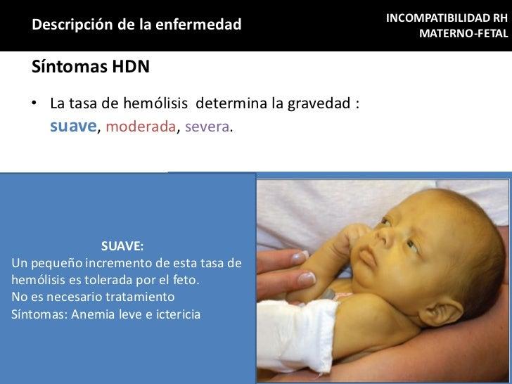 INCOMPATIBILIDAD RH   Descripción de la enfermedad                         MATERNO-FETAL   Síntomas HDN   • La tasa de hem...