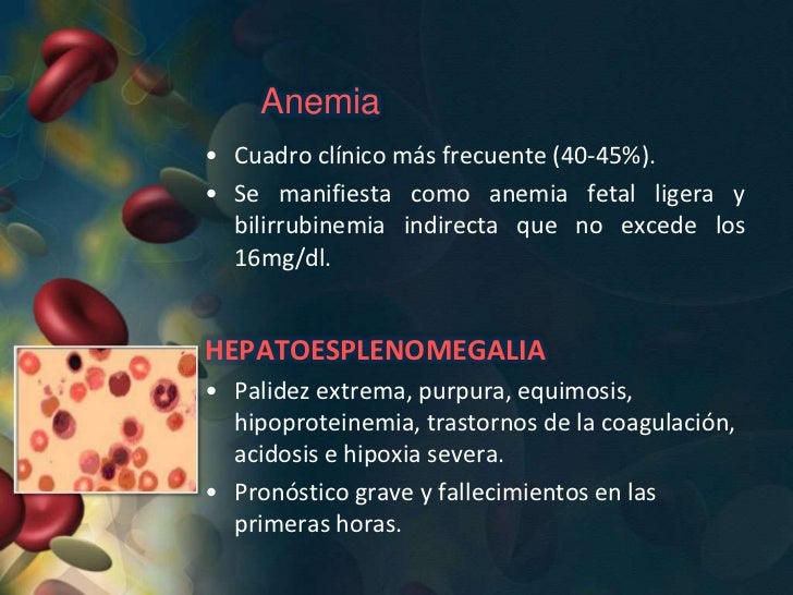 ICTERICIA GRAVE DEL RECIÉN NACIDO• Constituye aproximadamente del 25-30%.• Los RN presentan anemia severa con  hiperbilirr...