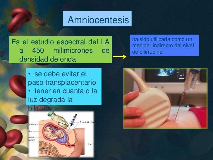 • Coombs Indirecto: investiga anticuerpos  inmunes.