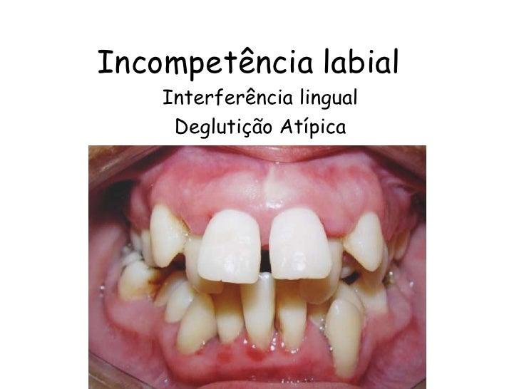 Incompetência labial<br />Interferência lingual<br />Deglutição Atípica<br />