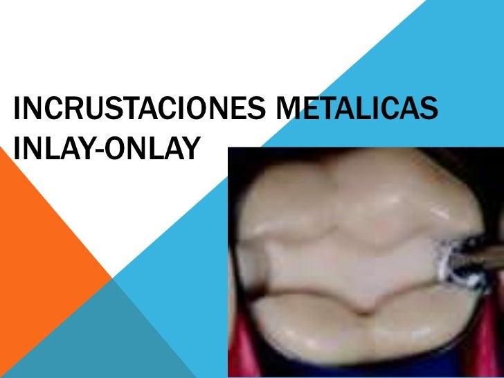 INCRUSTACIONES METALICASINLAY-ONLAY