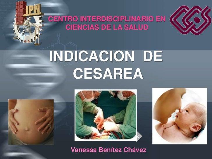 CENTRO INTERDISCIPLINARIO EN     CIENCIAS DE LA SALUD    INDICACION DE    CESAREA                       Your Logo        V...