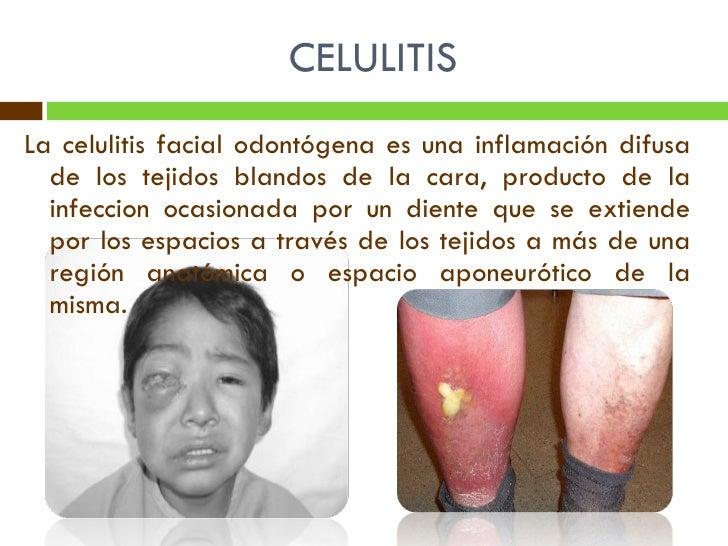 Tratamiento de cellulitis facial