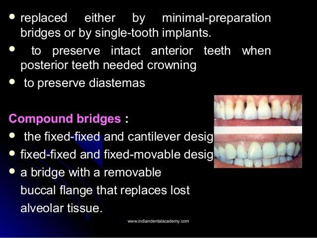 Indications Contraindications And Classification Of Bridges Endodonti