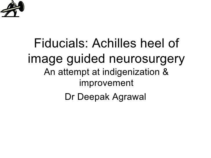 Fiducials: Achilles heel of image guided neurosurgery An attempt at indigenization & improvement Dr Deepak Agrawal