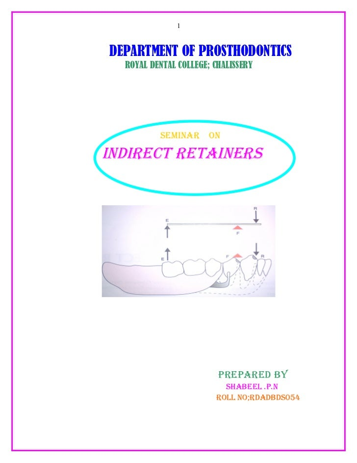 1    DEPARTMENT OF PROSTHODONTICS   ROYAL DENTAL COLLEGE; CHALISSERY               SEMINAR      ON  INDIRECT RETAINERS    ...