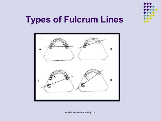 Wonderful Types Of Fulcrum Lines Www.indiandentalacademy.com ...