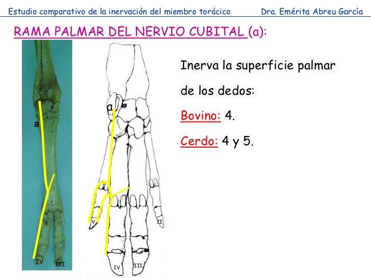 Estudio comparativo de la inervación del miembro torácico    Dra. Emérita Abreu García RAMA PALMAR DEL NERVIO CUBITAL (a):...