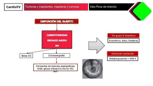 Tumores y trasplantes, trasplantes y tumores Slide 3