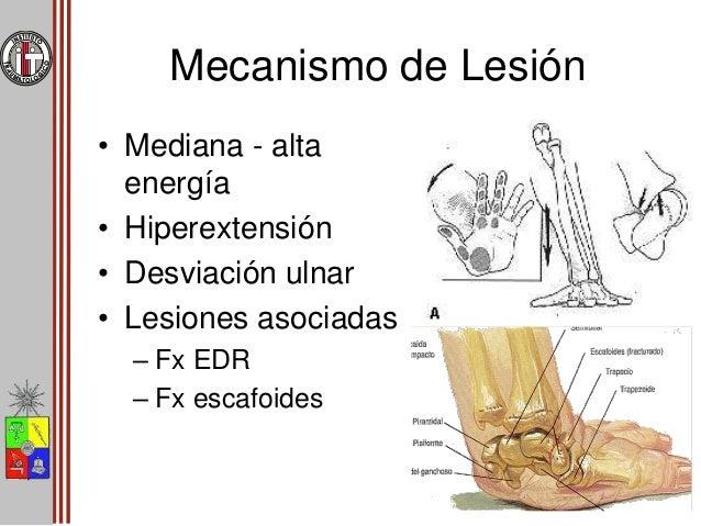 Mecanismo de Lesión • Etapas de Mayfield Estadío I Disocioación escafolunar/fractura de escafoides