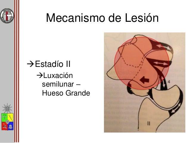 Mecanismo de Lesión Estadío III Disrrupción lunopiramidal/frac tura del piramidal