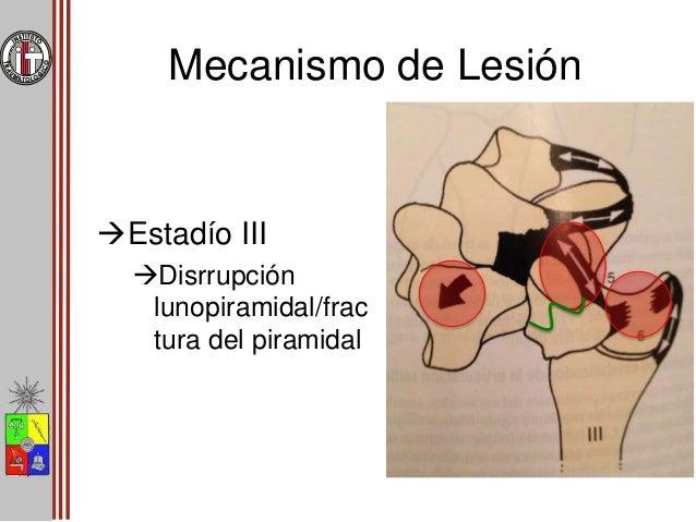 Mecanismo de Lesión Estadío IV Luxación del semilunar