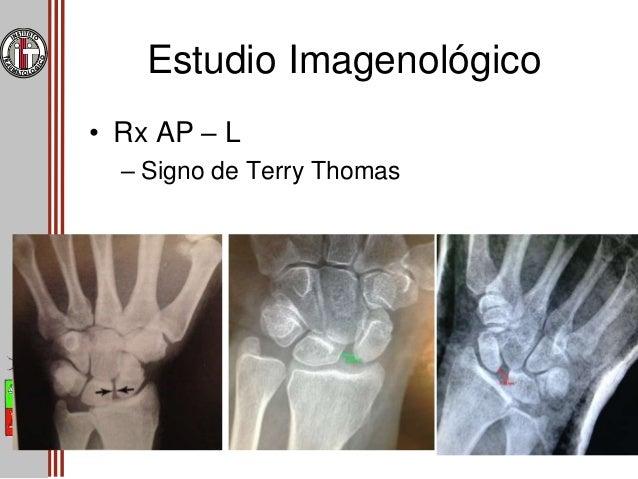Estudio Imagenológico • Rx AP – L – Signo del anillo