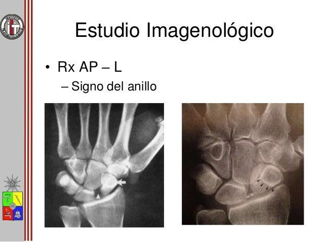 Estudio Imagenológico • Rx AP – L – Angulo escafolunar