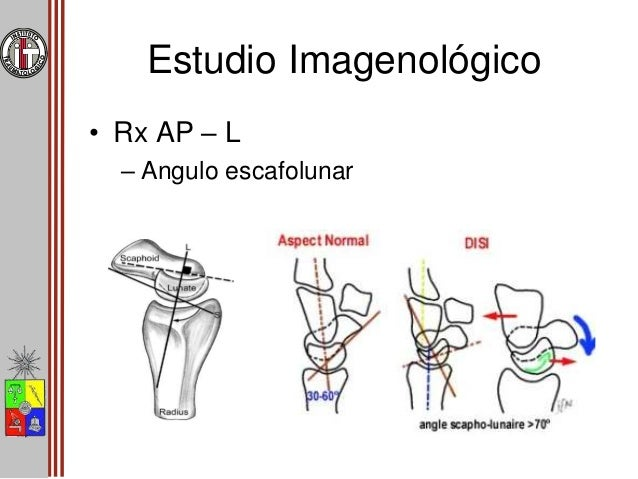 Estudio Imagenológico • Rx AP – L – Angulo radiolunar