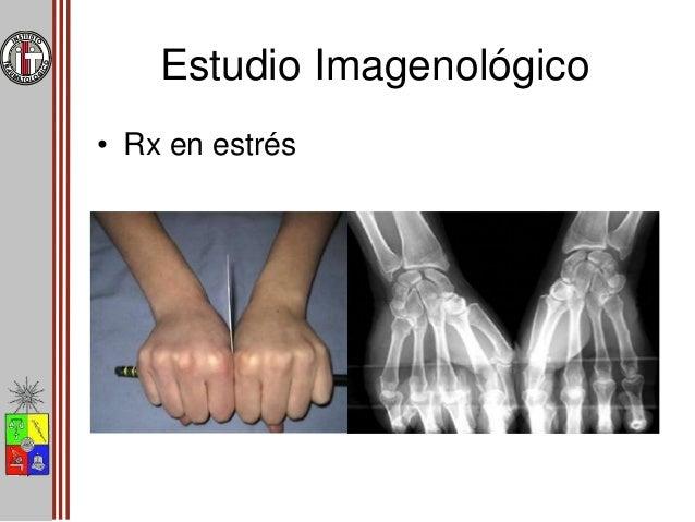 Estudio Imagenológico • Artrografía • TAC • RM