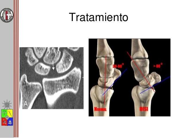 Estadío I Inestabilidad Oculta • Artrodesis transitoria con agujas – 4 – 6 semanas