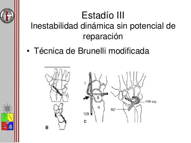 Estadío IV - V DISI • Metas – Disminuir el dolor – Preservar función – Retrasar progresión artrosis • Tenodesis • Artrodes...