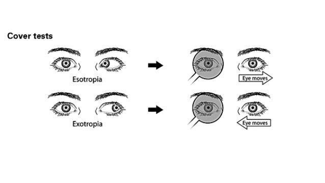 Infantile congenital esotropia