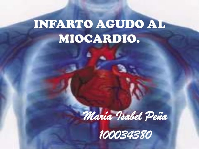 INFARTO AGUDO AL MIOCARDIO. María Isabel Peña 100034380