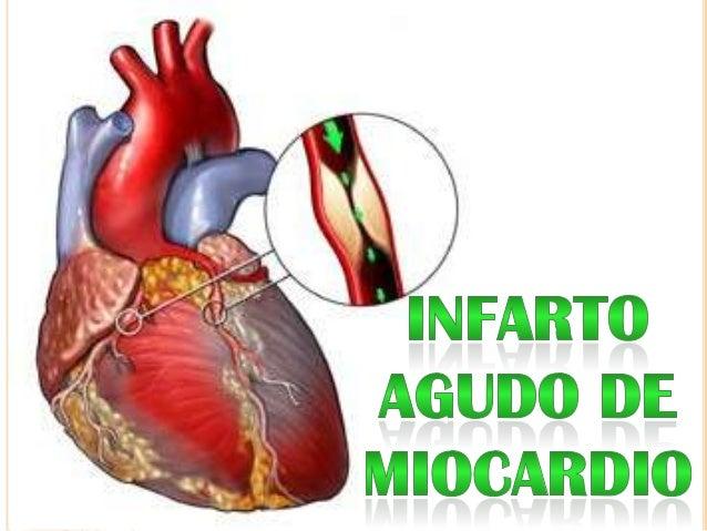  Riego  sanguíneo insuficiente, con daño tisular en  una parte del corazón Agudo = súbito, mio = músculo y cardio = cora...
