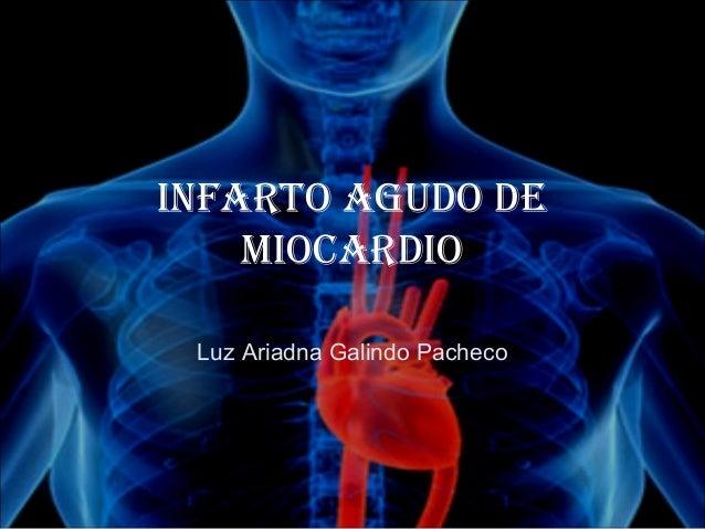 Infarto agudo de    MIocardIo Luz Ariadna Galindo Pacheco