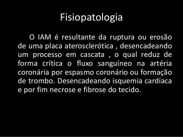 Infarto agudo do miocárdio   (IAM) Slide 3