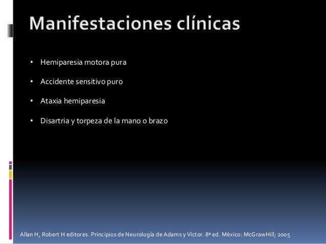 • Hemiparesia motora pura • Accidente sensitivo puro • Ataxia hemiparesia • Disartria y torpeza de la mano o brazo Allan H...