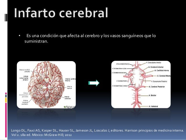 • Es una condición que afecta al cerebro y los vasos sanguíneos que lo suministran. Longo DL, FauciAS, Kasper DL, Hauser S...