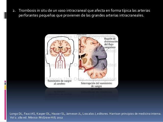 2. Trombosis in situ de un vaso intracraneal que afecta en forma típica las arterias perforantes pequeñas que provienen de...