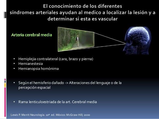 • Hemiplejia contralateral (cara, brazo y pierna) • Hemianestesia • Hemianopsia homónima • Según el hemisferio dañado -> A...