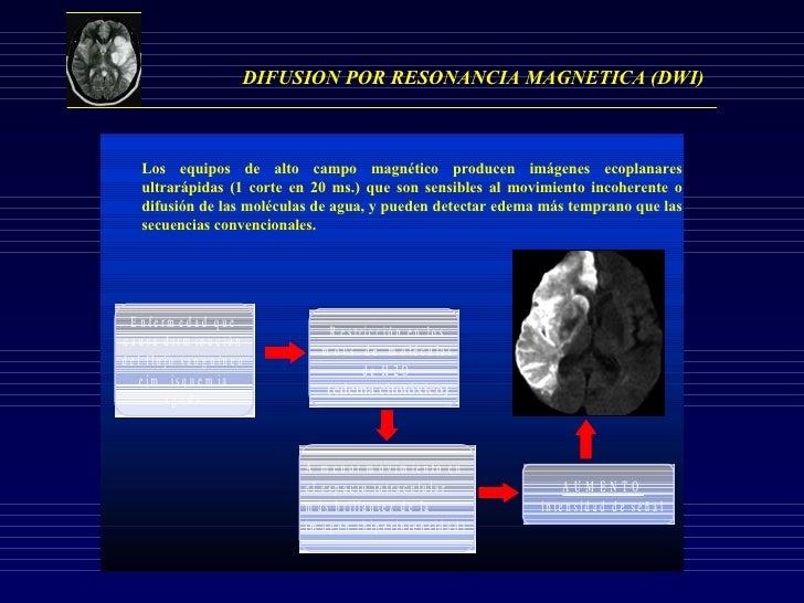 DIFUSION POR RESONANCIA MAGNETICA (DWI) Los equipos de alto campo magnético producen imágenes ecoplanares ultrarápidas (1 ...