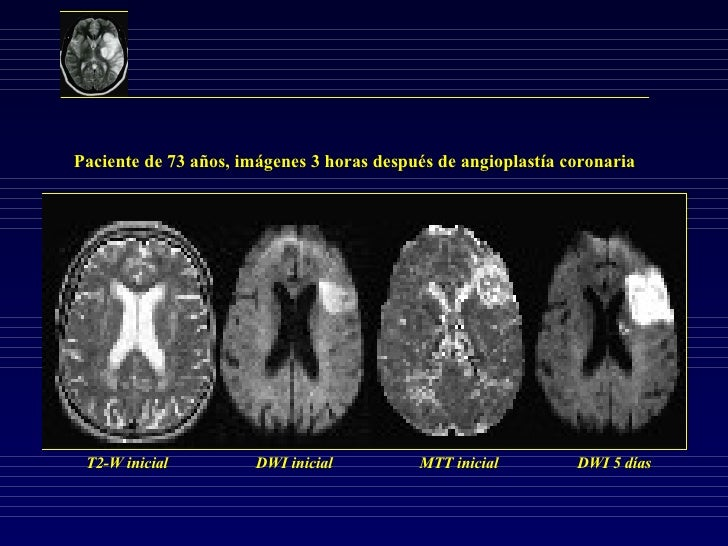 Paciente de 73 años, imágenes 3 horas después de angioplastía coronaria T2-W inicial DWI inicial MTT inicial DWI 5 días