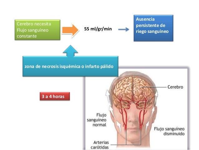 AusenciaCerebro necesita                                 persistente deFlujo sanguíneo                55 ml/gr/min        ...