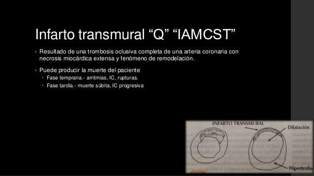 """Infarto transmural """"Q"""" """"IAMCST""""• Resultado de una trombosis oclusiva completa de una arteria coronaria connecrosis miocárd..."""