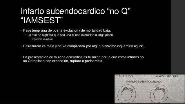 """Infarto subendocardico """"no Q""""""""IAMSEST""""• Fase temprana de buena evoluciony de mortalidad baja; Lo que no significa que sea..."""