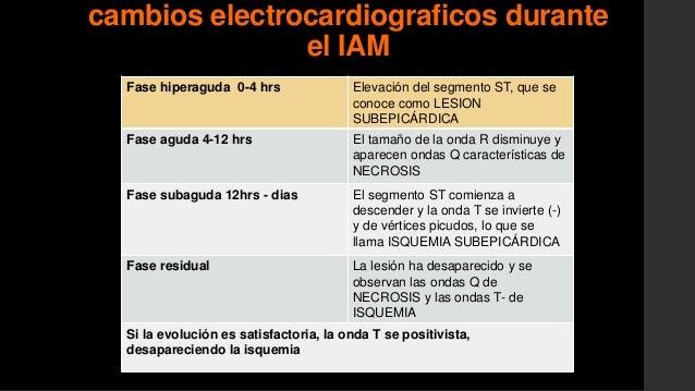 en la polaridad y morfología de laonda T• Retraso repolarización• Vector isquemia: se aleja del áreay apunta al epicardio•...