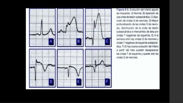LESION: se representa por elsegmento ST• Vector lesión: hacia el áreaafectada, alejándose delepicardio• Desnivel - STLesió...