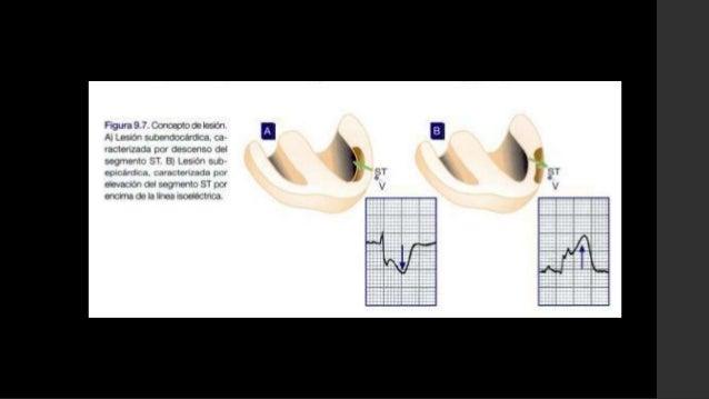 Marcadores Séricos en IAM:• Troponinas cardiacas específicas T (TncT) e I (TncI): Aumentan > 20 delvalor normal. Los nivel...