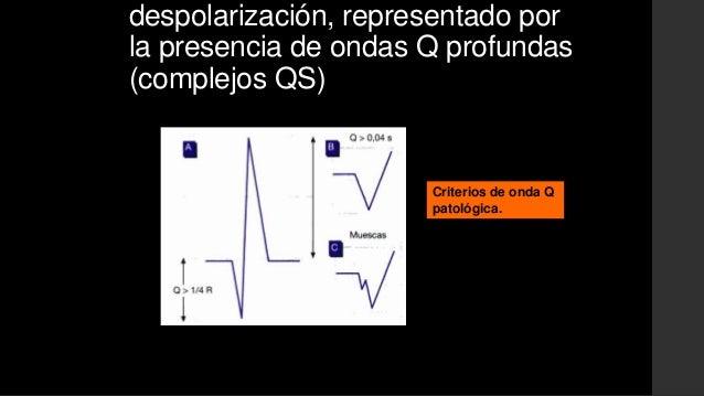Marcadores Séricos en IAM:• Daño Miocárdico inespecífico:Leucocitosis Polimorfonuclear, Dura de 3 a 7 días, hastaniveles 1...