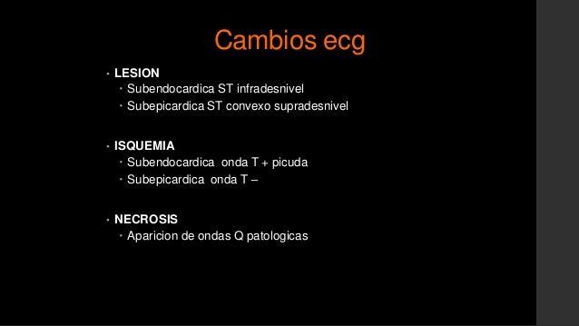Radiografía de tórax• Hipertensión venocapilar• Edema pulmonar en estadios subclínicos• Índice cardiaco• Posición y locali...
