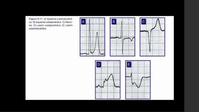 Ecocardiografia bidimensional• Anormalidades en la cinética parietal No se puede diferenciar entre un IAM o una cicatriz ...