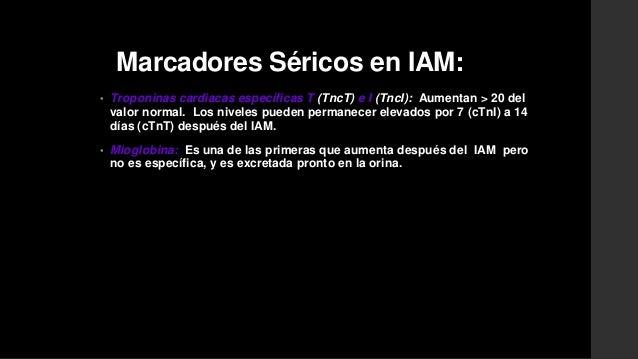 RMN cardiaca• Se detecta con precisión el IAM Contraste tardío Gadolinio