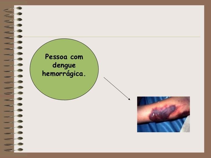 Pessoa com dengue hemorrágica.