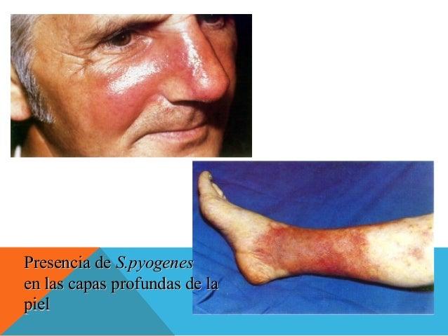 Las manchas en la piel de pigmento vascular