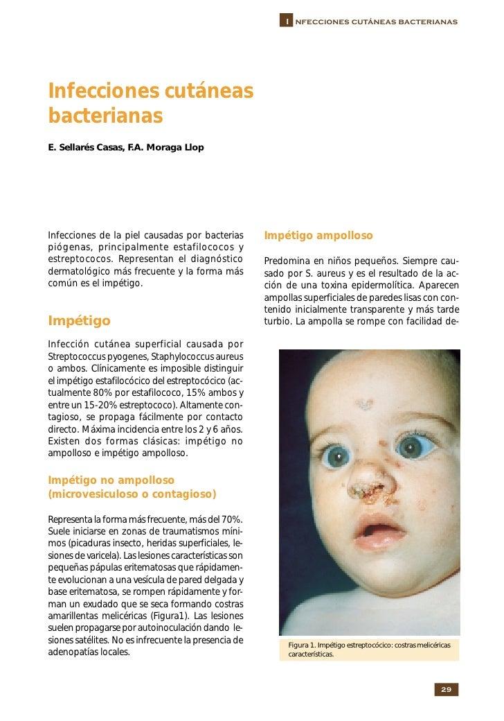 I nfecciones cutáneas bacterianas     Infecciones cutáneas bacterianas E. Sellarés Casas, F.A. Moraga Llop     Infecciones...
