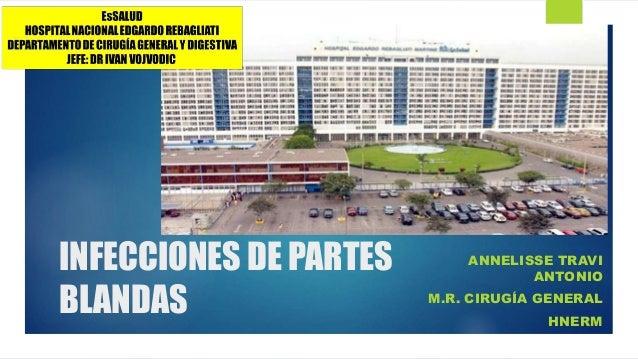 INFECCIONES DE PARTES BLANDAS ANNELISSE TRAVI ANTONIO M.R. CIRUGÍA GENERAL HNERM